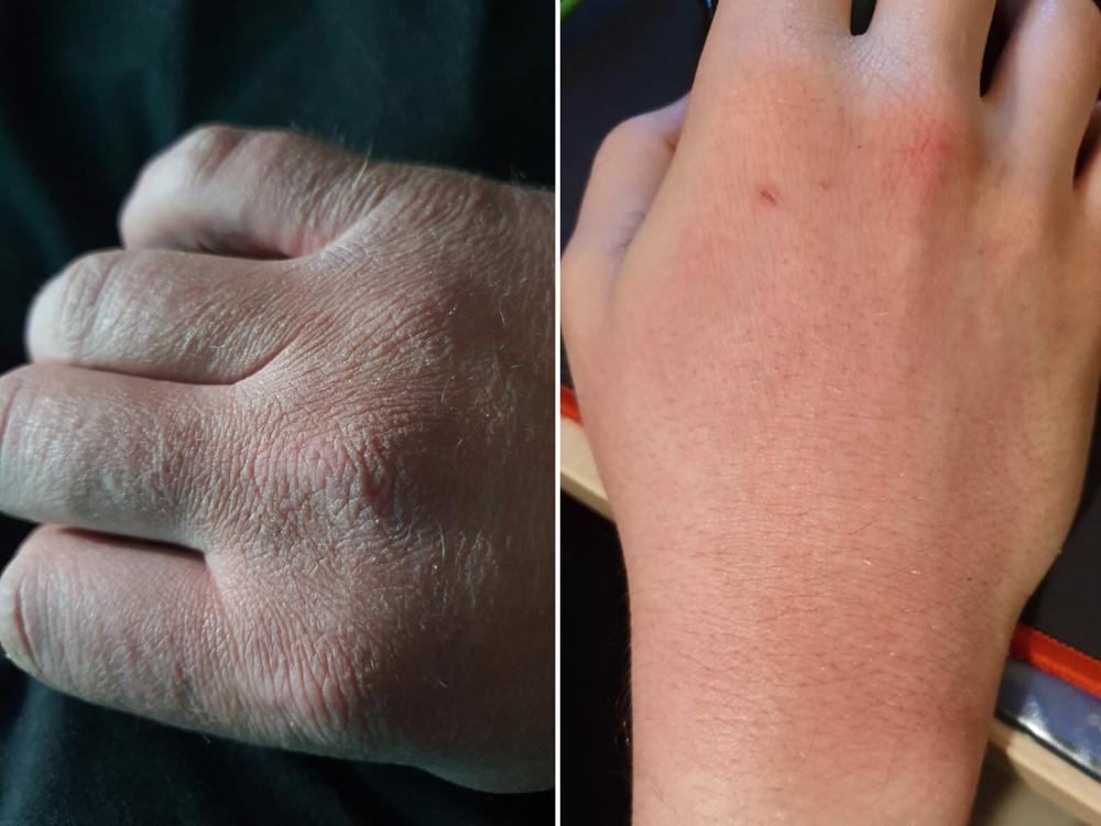 recomandari pentru a evita uscarea pielii dupa spalarea mainilor