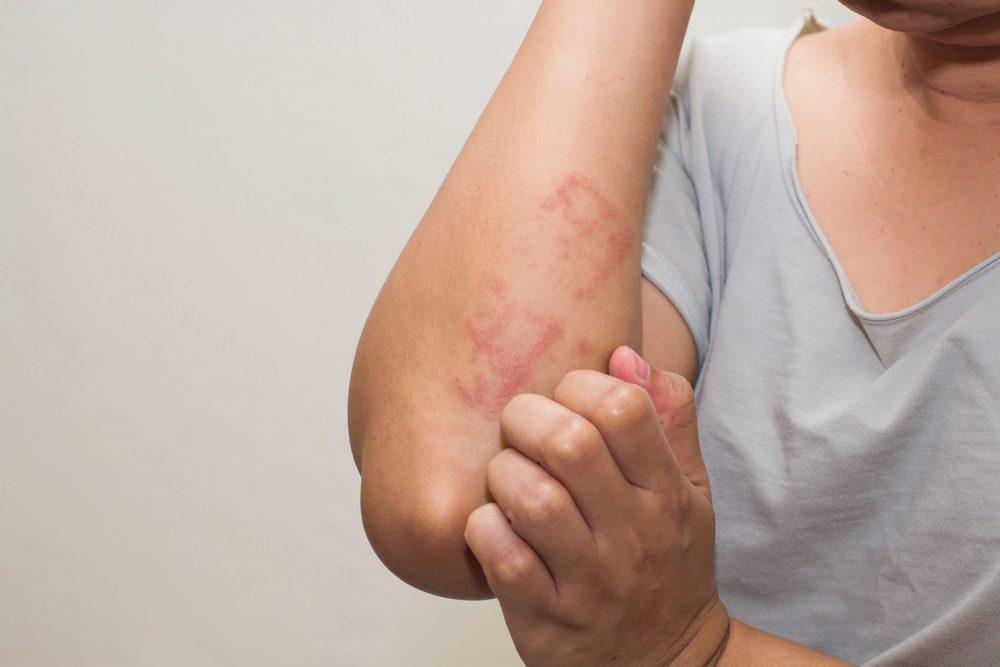 pete roșii pe picioare simptome