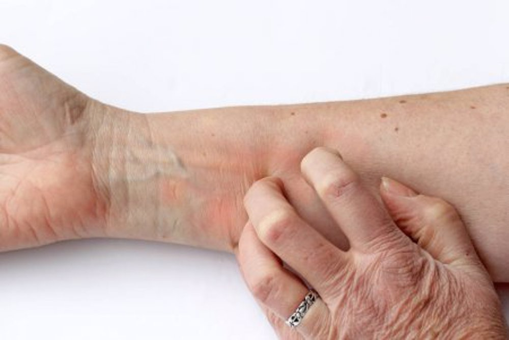 tratarea eczemelor cluj