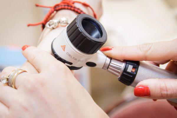 Tratarea onicomicozei cu laser cluj-napoca