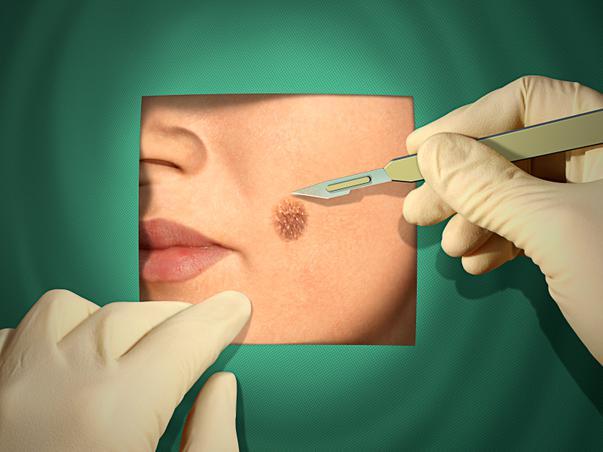 biopsii cutanate cluj